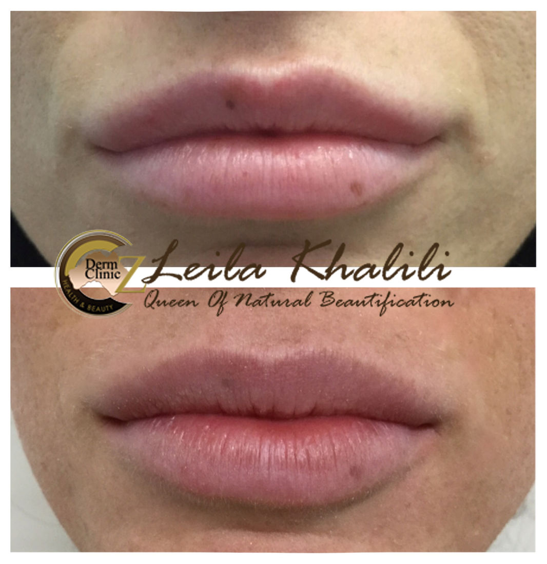Returning Lips to Natural & full lips